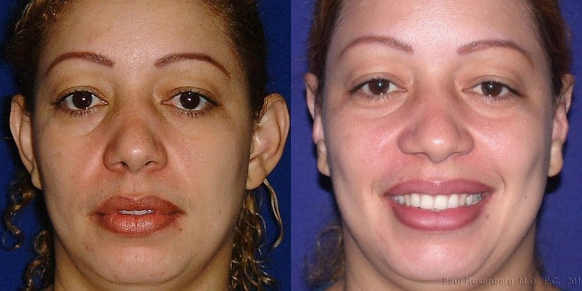 otoplasty nj