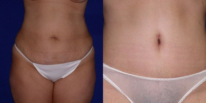 NJ Tummy Tuck