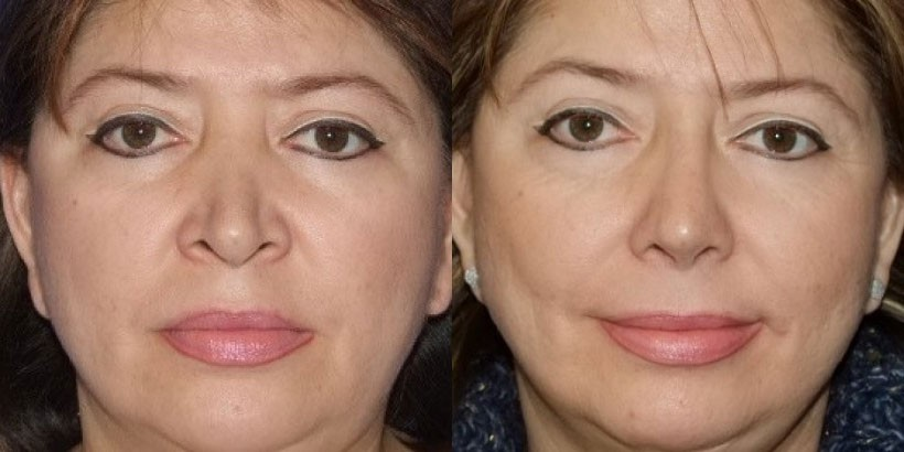 New Jersey Plastic Surgery