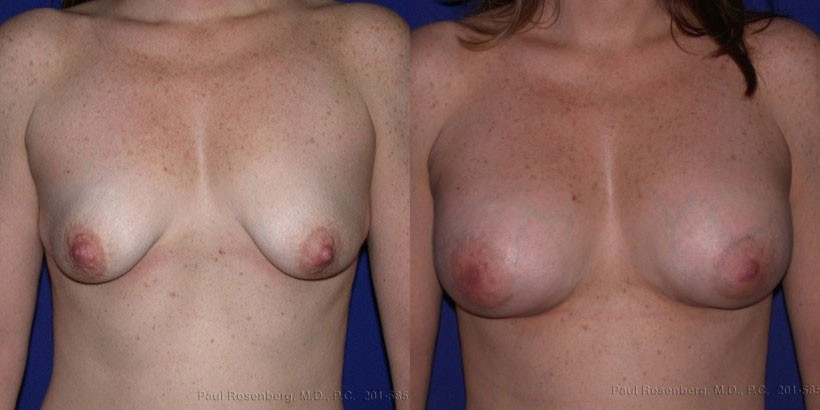 NJ Breast Augmentation