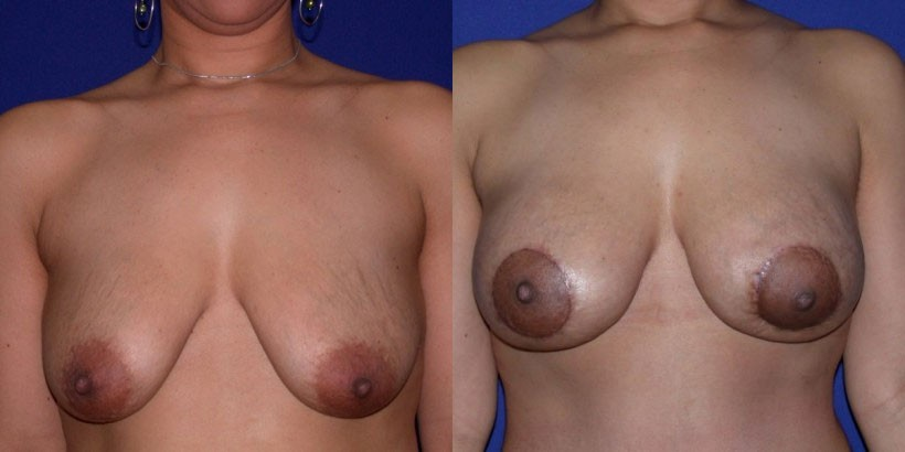 NJ Breast Lift