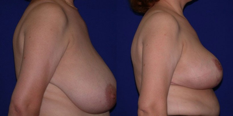 Breast Augmentation Breast Lift Breast Reduction