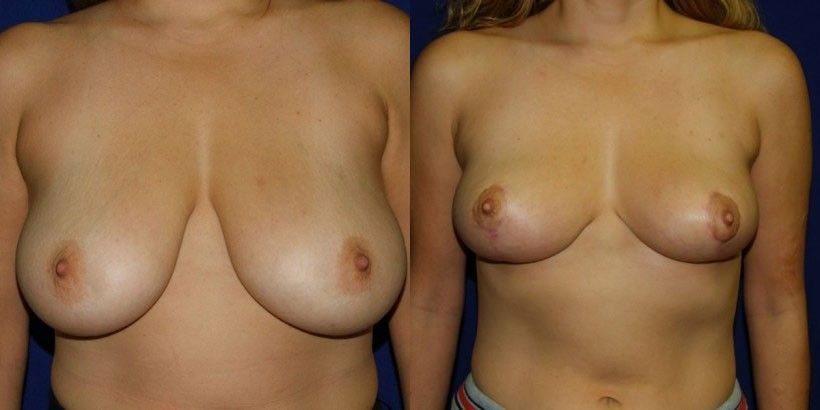 NJ Breast Reduction