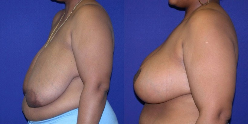Bergen county breast reduction