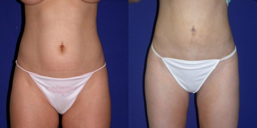 nj liposuction