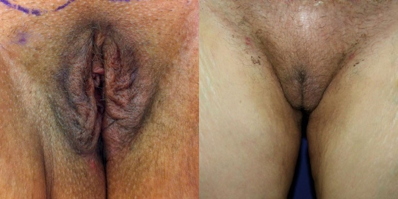 new jersey labiaplasty