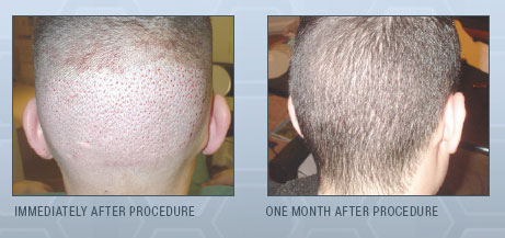 New Jersey Hair Restoration